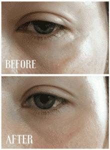 avant_apres-massage-yeux