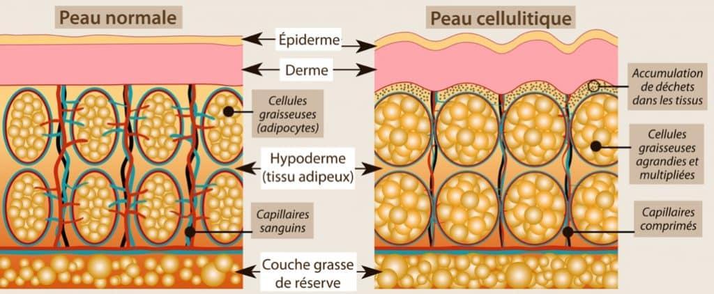 schema-definition-cellulite